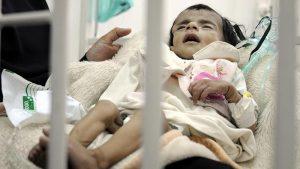 Yemen'de Her Yıl 66 Bin Çocuk Ölüyor