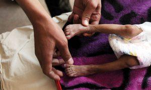 Unutulmaya Yüz Tutan En Büyük İnsani Kriz: Yemen