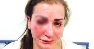 Almanya'da Türk Kadına Tramvayda Saldırı